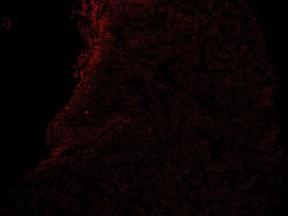 J_14dpci h9 2nd section 17.03.15 KDRxcmlc2 NRP1 red 10X
