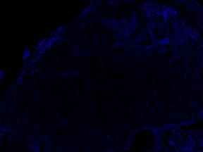 P_C3-26.08.15 VL.lif - 14dpci h9 4th section 17.03.15 KDRxcmlc2 DAPI 10X